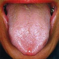 Zungendiagnostik