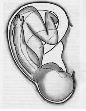 """Abb. 1: Projektion eines Embryo auf die Ohroberfläche aus dem Buch """"Ohrakupunktur"""" von Michael Noack"""